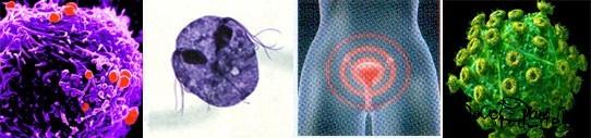 Еще раз об Инфекциях, передаваемых половым путем